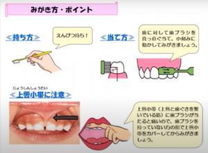 歯のお手入れ 歯ブラシ持ち方